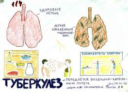 """Тамбовские фтизиаторы: """"Больных туберкулезом в области стало меньше"""""""