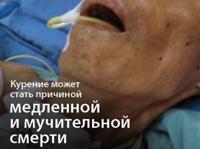 Ужасающие картинки появятся на пачках сигарет в 2012 году