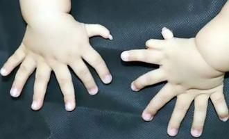 В Китае женщина родила ребёнка с 31 пальцем