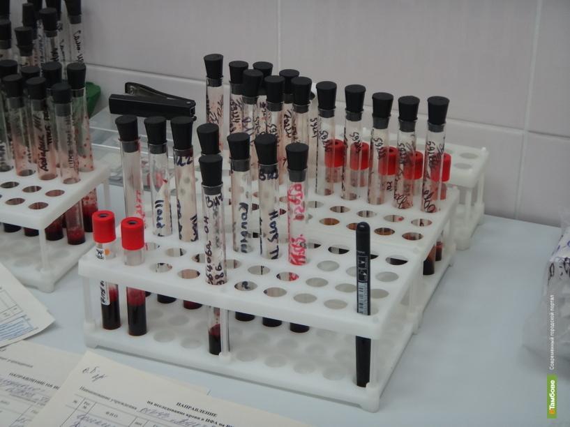 За десять месяцев в Мичуринске выявили 25 новых случаев заболевания ВИЧ-инфекцией