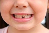 Британцы отдали молочные зубы своей дочери в банк стволовых клеток