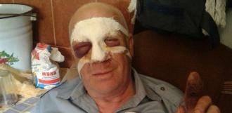 Тамбовского пенсионера избил боец ММА