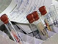 Тамбовчане стали чаще болеть гонореей и ВИЧ