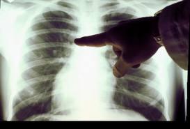 Троих тамбовчанок заставят сделать рентген