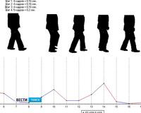 Врачей научат ставить диагноз по походке