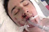 Принцу Монако в одном из клубов Нью-Йорка разбили лицо