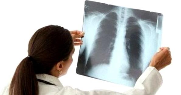Прокуратура требует госпитализировать больного заразной формой туберкулёза