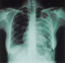 Тамбовчанке поставили диагноз «ОРВИ» вместо «туберкулёза»