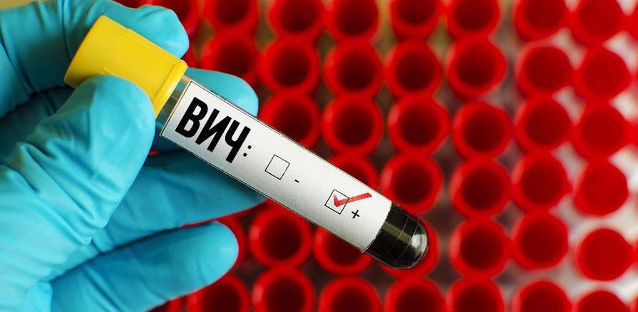 В этом году в регионе увеличилось количество ВИЧ-инфицированных