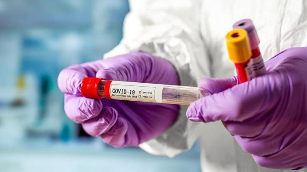В Тамбове начала работать еще одна лаборатория для тестирования на коронавирус