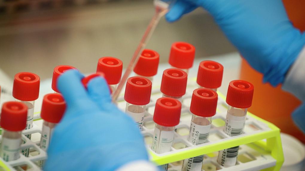За сутки коронавирусом заболели 99 жителей Тамбовской области